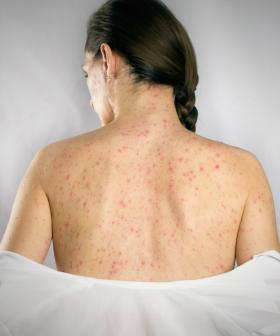 Health Warning Issued As Young Adelaide Woman Diagnosed With Measles