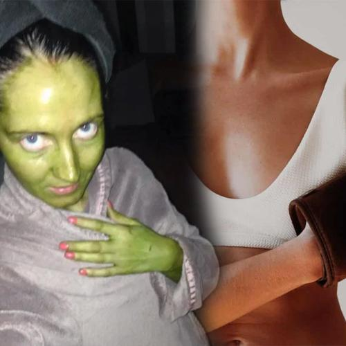 Woman Accidentally Turns Her Entire Body Bright Green After Using Out-Of-Date Fake Tan
